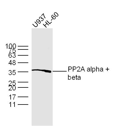 Lane 1: U937 lysates; Lane 2: HL-60 lysates probed with PP2A alpha + beta Polyclonal Antibody, Unconjugated (bs-0029R) at 1:300 dilution and 4˚C overnight incubation. Followed by conjugated secondary antibody incubation at 1:10000 for 60 min at 37˚C.