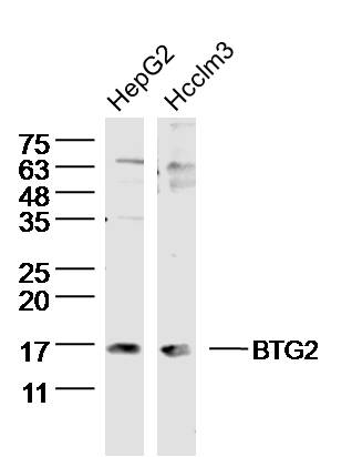 Lane 1: HepG2 lysates; Lane 2: Hcclm3 lysates probed with BTG2 Polyclonal Antibody, Unconjugated (bs-0031R) at 1:300 dilution and 4\u02daC overnight incubation. Followed by conjugated secondary antibody incubation at 1:10000 for 60 min at 37\u02daC.