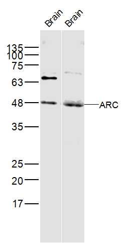 Lane 1: Rat brain; Lane 2: mouse brain lysate probed with ARC  Polyclonal Antibody, Unconjugated (bs-0385R) at 1:300 dilution and 4\u02daC overnight incubation. Followed by conjugated secondary antibody incubation at 1:10000 for 60 min at 37\u02daC.
