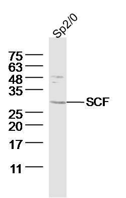 Sp2/0 (Mouse myeloma cell) lysates probed with SCF Polyclonal Antibody, Unconjugated (bs-0545R) at 1:300 dilution and 4˚C overnight incubation. Followed by conjugated secondary antibody incubation at 1:10000 for 60 min at 37˚C.