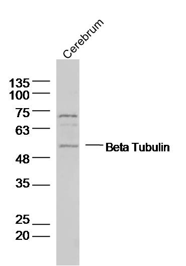 Rat Cerebrum lysates probed with Beta Tubulin Polyclonal Antibody, Unconjugated (bs-0715R) at 1:1000 dilution and 4\u02daC overnight incubation. Followed by conjugated secondary antibody incubation at 1:10000 for 60 min at 37\u02daC.