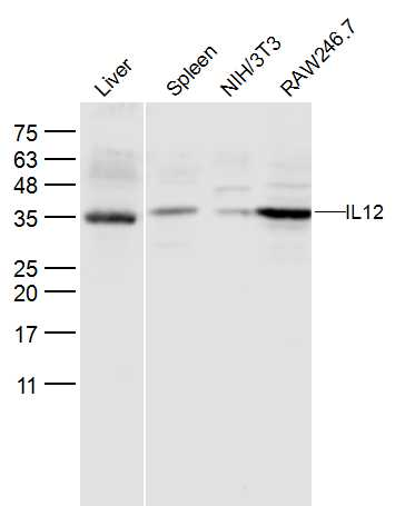 Lane 1: Mouse Liver; Lane 2: Mouse Spleen lysates; Lane 3: NIH'3T3; Lane 4: RAW246.7 lysates probed with IL12 Polyclonal Antibody, Unconjugated (bs-0767R) at 1:300 dilution and 4\u02daC overnight incubation. Followed by conjugated secondary antibody incubation at 1:10000 for 60 min at 37\u02daC.