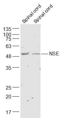 Lane 1: Mouse Spinal cord lysates; Lane 2: Rat Spinal cord lysates probed with NSE Polyclonal Antibody, Unconjugated (bs-1027R) at 1:300 dilution and 4\u02daC overnight incubation. Followed by conjugated secondary antibody incubation at 1:10000 for 60 min at 37\u02daC.