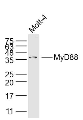 Molt-4 lysates probed with MyD88 Polyclonal Antibody, Unconjugated (bs-1047R) at 1:300 dilution and 4\u02daC overnight incubation. Followed by conjugated secondary antibody incubation at 1:10000 for 60 min at 37\u02daC.