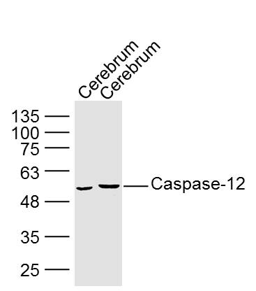 Lane 1: Mouse Cerebrum lysates; Lane 2: Rat Cerebrum lysates probed with Caspase 12 Polyclonal Antibody, Unconjugated (bs-1105R) at 1:300 dilution and 4\u02daC overnight incubation. Followed by conjugated secondary antibody incubation at 1:10000 for 60 min at 37\u02daC.