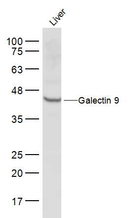 Mouse liver lysates probed with Galectin 9 Polyclonal Antibody, Unconjugated (bs-1699R) at 1:500 dilution and 4\u02daC overnight incubation. Followed by conjugated secondary antibody incubation at 1:10000 for 60 min at 37\u02daC.