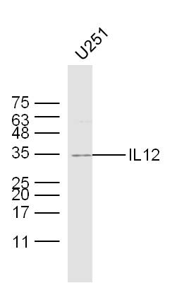 U251 lysates probed with IL12 Polyclonal Antibody, Unconjugated (bs-1789R) at 1:300 dilution and 4\u02daC overnight incubation. Followed by conjugated secondary antibody incubation at 1:10000 for 60 min at 37\u02daC.