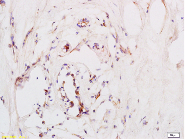Formalin-fixed and paraffin embedded human breast carcinoma labeled with Anti-CD184\/CXCR4 Polyclonal Antibody (bs-1011R), Unconjugated at 1:200, followed by conjugation to the secondary antibody and DAB staining