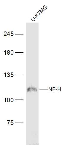 U-87MG lysates probed with NF-H Polyclonal Antibody, Unconjugated (bs-10680R) at 1:300 dilution and 4\u02daC overnight incubation. Followed by conjugated secondary antibody incubation at 1:10000 for 60 min at 37\u02daC.