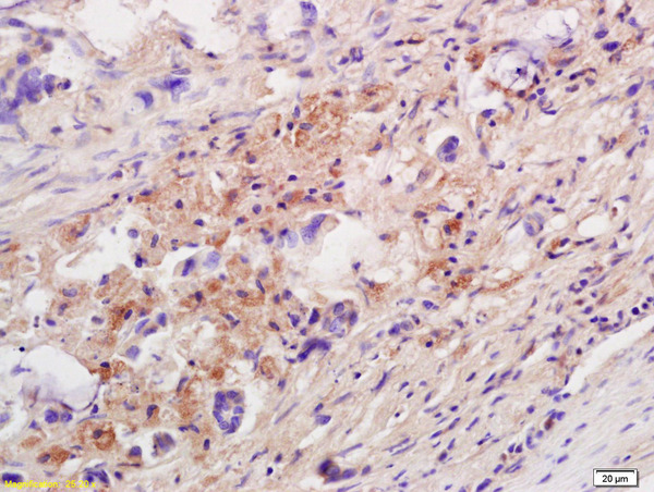 Formalin-fixed and paraffin embedded human colon carcinoma labeled with Anti-IL-10 Polyclonal Antibody, Unconjugated (bs-6761R) at 1:200 followed by conjugation to the secondary antibody and DAB staining.