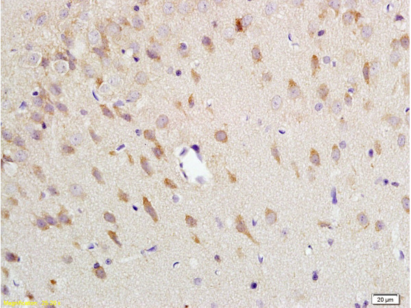 Formalin-fixed and paraffin embedded: rat brain tissue labeled with Anti-NK-2R Polyclonal Antibody (bs-0123R), Unconjugated at 1:200 followed by conjugation to the secondary antibody and DAB staining