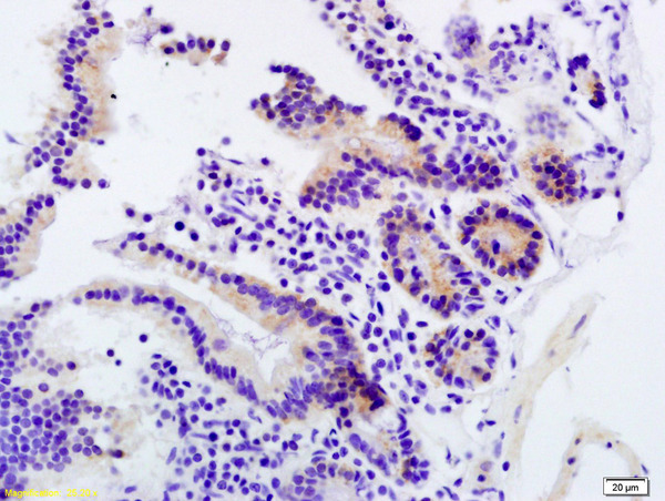 Formalin-fixed and paraffin embedded mouse colon labeled with Anti-PD-1\/CD279 Polyclonal Antibody, Unconjugated (bs-1867R) at 1:200 followed by conjugation to the secondary antibody and DAB staining.