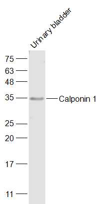 Mouse urinary Bladder lysates probed with Calponin 1 Polyclonal Antibody, Unconjugated (bs-0095R) at 1:500 dilution and 4\u02daC overnight incubation. Followed by conjugated secondary antibody incubation at 1:20000 for 60 min at 37\u02daC
