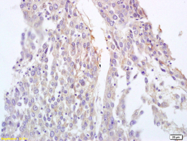 Formalin-fixed and paraffin embedded human lung carcinoma labeled with Anti-BRLF1 Polyclonal Antibody, Unconjugated (bs-4542R) at 1:200 followed by conjugation to the secondary antibody and DAB staining.