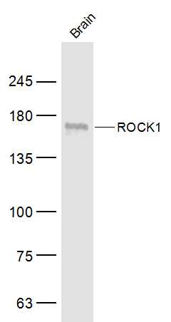 Mouse brain lysates probed with ROCK1 Polyclonal Antibody, Unconjugated (bs-1166R) at 1:500 dilution and 4˚C overnight incubation. Followed by conjugated secondary antibody incubation at 1:10000 for 60 min at 37˚C.