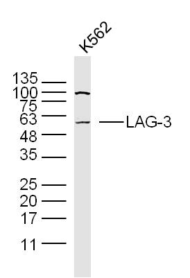 K562 cell lysates probed with LAG-3 Polyclonal Antibody, Unconjugated (bs-2646R) at 1:300 dilution and 4\u02daC overnight incubation. Followed by conjugated secondary antibody incubation at 1:20000 for 60 min at 37\u02daC.