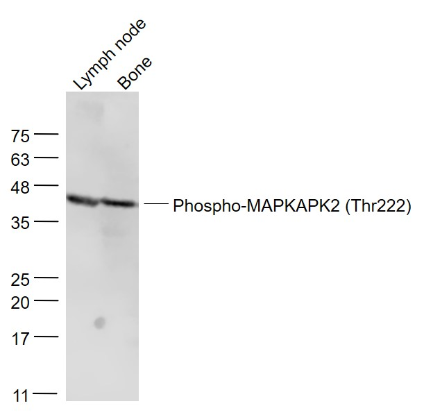 Lane 1: Mouse lymph node lysates; Lane 2: Mouse bone lysates probed with MAPKAPK2 (Thr222) Polyclonal Antibody, Unconjugated (bs-3261R) at 1:300 dilution and 4\u02daC overnight incubation. Followed by conjugated secondary antibody incubation at 1:20000 for 60 min at 37\u02daC.