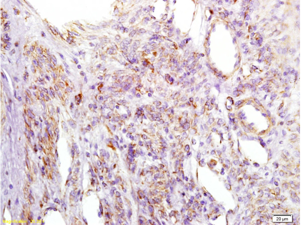 Formalin-fixed and paraffin embedded human cervical carcinoma labeled with Anti-IGFBP2 Polyclonal Antibody, Unconjugated (bs-1108R) at 1:200 followed by conjugation to the secondary antibody and DAB staining.
