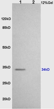 L1 rat brain lysates L2 rat heart lysates probed with Anti CD86/B7-2 Polyclonal Antibody, Unconjugated (bs-1035R) at 1:200 overnight at 4˚C. Followed by conjugation to secondary antibody (bs-0295G-HRP) at 1:3000 for 90 min at 37˚C. Predicted band 34kD. Observed band size:34kD.\\n