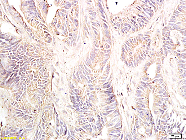 Formalin-fixed and paraffin embedded: human colon cancer tissue labeled with Anti-Dnmt-3-beta Polyclonal Antibody, Unconjugated (bs-0301R) at 1:600, followed by conjugation to the secondary antibody and DAB staining