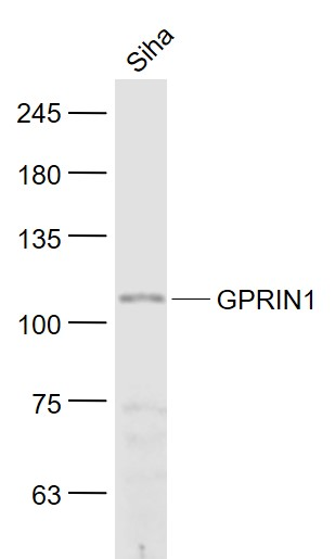 Siha cell lysates probed with GPRIN1 Polyclonal Antibody, Unconjugated (bs-8275R) at 1:1000 dilution and 4˚C overnight incubation. Followed by conjugated secondary antibody incubation at 1:20000 for 60 min at 37˚C.