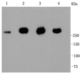 Lane 1: MCF-7; Lane 2: Jurkat; Lane 3: Hela; Lane 4: NIH/3T3; Probed with Filamin A (2G3) Monoclonal Antibody (bsm-52260R) at 1:1000 overnight at 4°C followed by a conjugated secondary antibody for 60 minutes at 37°C.