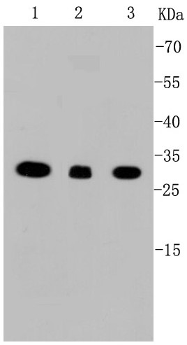 Lane 1: Raji; Lane 2: HepG2; Lane 3: SW480; Probed with VDAC1 (9A7 ) Monoclonal Antibody (bsm-52251R) at 1:1000 overnight at 4°C followed by a conjugated secondary antibody for 60 minutes at 37°C.