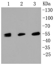 Lane 1: HT29; Lane 2: HUVEC; Lane 3: Hela lysate; Probed with MLKL (3G4) Monoclonal Antibody (bsm-52256R) at 1:1000 overnight at 4°C followed by a conjugated secondary antibody for 60 minutes at 37°C.
