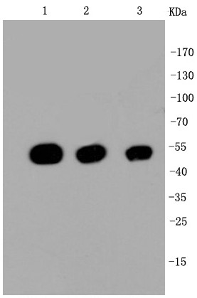 Lane 1: Hela; Lane 2: NIH/3T3; Lane 3: PC12 lysate probed with \r\nbeta Tubulin (2F11) Monoclonal Antibody (bsm-52290R) at 1:1000 overnight at 4°C followed by a conjugated secondary antibody for 60 minutes at 37°C.