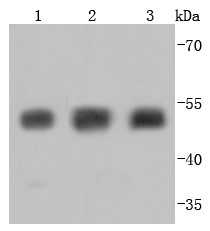 Lane 1: Hela; Lane 2: PC-12; Lane 3: SH-SY-5Y lysate probed with Tubulin beta-III (3B7) Monoclonal Antibody (bsm-52323R) at 1:1000 overnight at 4°C followed by a conjugated secondary antibody for 60 minutes at 37°C.