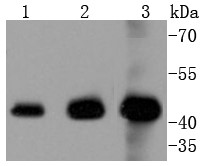 Lane 1: Hela; Lane 2: Jurkat; Lane 3: K562 lysate probed with ERK1 (6B4) Monoclonal Antibody (bsm-52329R) at 1:1000 overnight at 4°C followed by a conjugated secondary antibody for 60 minutes at 37°C.