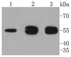 Lane 1: Raji Cells; Lane 2: Hela Cells; Lane 3: PC12 Cells;  Probed with ATG5 (4G5) Monoclonal Antibody (bsm-52596R) at 1:1000 overnight at 4\u00b0C followed by a conjugated secondary antibody for 60 minutes at 37\u00b0C.