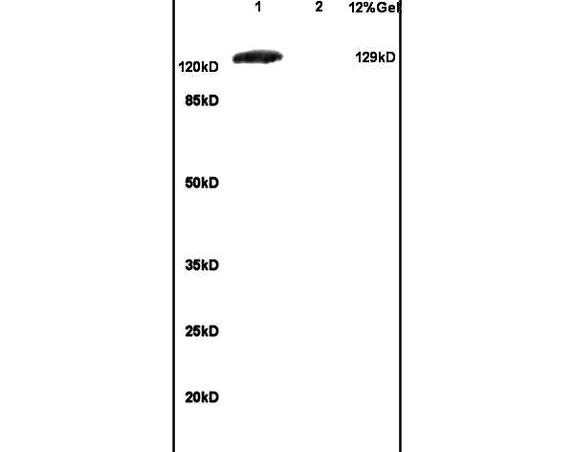 Lane 1: mouse brain lysates Lane 2: mouse embryo lysates probed with Anti GRM1 Polyclonal Antibody, Unconjugated (bs-1803R) at 1:200 in 4\u02daC. Followed by conjugation to secondary antibody (bs-0295G-HRP) at 1:3000 90min in 37\u02daC. Predicted band 129kD. Observed band size: 129kD.