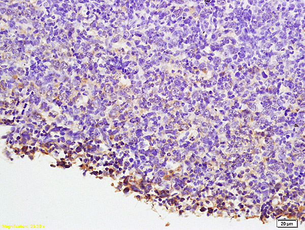 Formalin-fixed and paraffin embedded mouse lymphoma labeled with Anti-NFATC1\/NFAT2  Polyclonal Antibody, Unconjugated (bs-1417R) at 1:200 followed by conjugation to the secondary antibody and DAB staining.