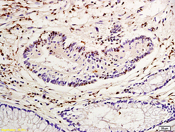 Formalin-fixed and paraffin embedded human colon carcinoma labeled with Anti-Nucleophosmin Polyclonal Antibody, Unconjugated (bs-4757R) at 1:200 followed by conjugation to the secondary antibody and DAB staining
