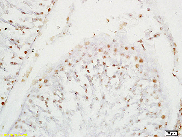 Formalin-fixed and paraffin embedded rat testis labeled with Anti-SOX9\/SRA1 Polyclonal Antibody, Unconjugated (bs-4177R) at 1:200 followed by conjugation to the secondary antibody and DAB staining