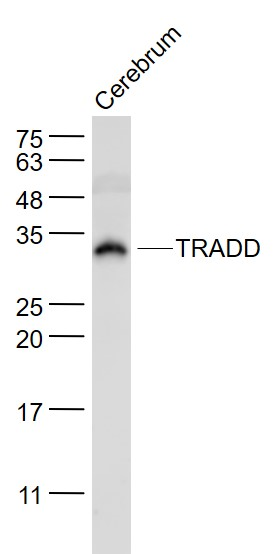 Cerebrum lysates probed with TRADD Polyclonal Antibody, Unconjugated (bs-1202R) at 1:1000 dilution and 4\u02daC overnight incubation. Followed by conjugated secondary antibody incubation at 1:20000 for 60 min at 37\u02daC.