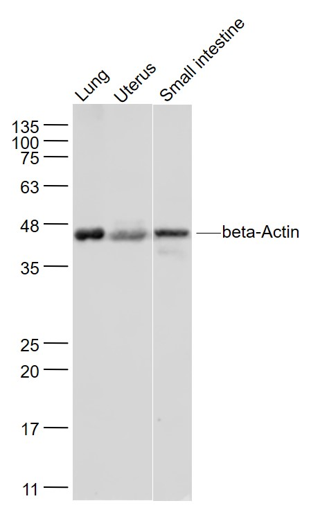 Lane 1: Mouse lung lysates;Lane 2: Mouse uterus lysates; Lane 3: Mouse small intestine lysates probed with beta Actin Polyclonal Antibody, Unconjugated (bs-0061R) at 1:1000 dilution and 4\u02daC overnight incubation. Followed by conjugated secondary antibody incubation at 1:20000 for 60 min at 37\u02daC.