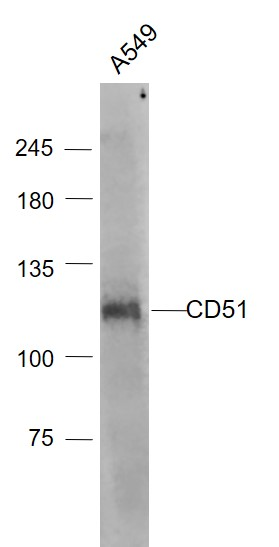A549 cell lysates probed with Integrin alpha V\/CD51 Polyclonal Antibody, Unconjugated (bs-2250R) at 1:1000 dilution and 4\u02daC overnight incubation. Followed by conjugated secondary antibody incubation at 1:20000 for 60 min at 37\u02daC.
