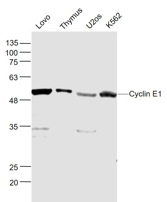 Lane 1: Lovo cell lysates; Lane 2: Mouse Thymus lysates; Lane 3: U2os cell lysates; Lane 4: K562 cell lysates probed with Cyclin E Polyclonal Antibody, Unconjugated (bs-0573R) at 1:1000 dilution and 4\u02daC overnight incubation. Followed by conjugated secondary antibody incubation at 1:20000 for 60 min at 37\u02daC.