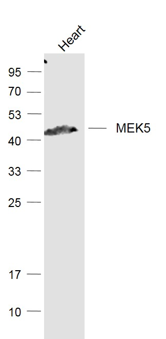 Mouse heart lysates probed with MEK5 Polyclonal Antibody, Unconjugated (bs-4124R) at 1:1000 dilution and 4\u02daC overnight incubation. Followed by conjugated secondary antibody incubation at 1:20000 for 60 min at 37\u02daC.