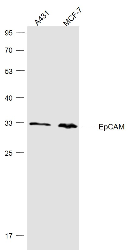 Lane 1: A431 cell lysates; Lane 2: MCF-7 cell lysates probed with SIRT4 Polyclonal Antibody, Unconjugated (bs-1513R) at 1:1000 dilution and 4\u02daC overnight incubation. Followed by conjugated secondary antibody incubation at 1:20000 for 60 min at 37\u02daC.