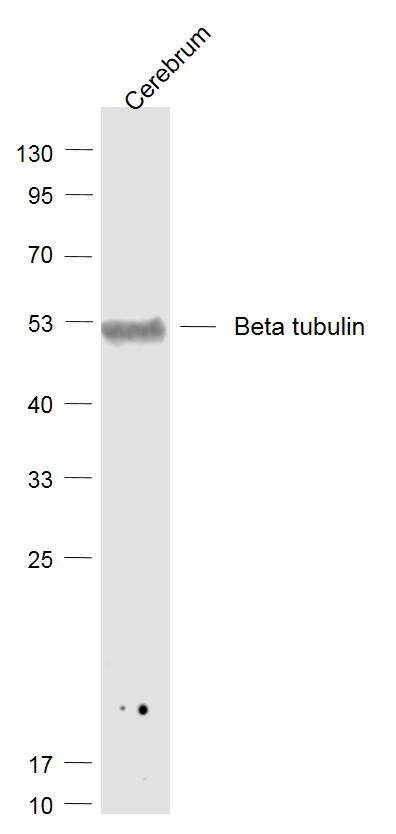 Lane 1: Cerebrum lysates probed with tubulin Beta Polyclonal Antibody, Unconjugated (bs-4511R) at 1:1000 dilution and 4\u02daC overnight incubation. Followed by conjugated secondary antibody incubation at 1:20000 for 60 min at 37\u02daC.