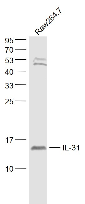 Lane 1: Raw264.7 cell lysates probed with IL-31 Polyclonal Antibody, Unconjugated (bs-10070R) at 1:1000 dilution and 4\u02daC overnight incubation. Followed by conjugated secondary antibody incubation at 1:20000 for 60 min at 37\u02daC.