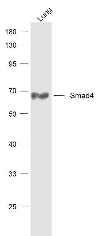 Lane 1: Lung lysates probed with Smad4 (3A1) Monoclonal Antibody, Unconjugated (bsm-52225R) at 1:1000 dilution and 4\u02daC overnight incubation. Followed by conjugated secondary antibody incubation at 1:20000 for 60 min at 37\u02daC.