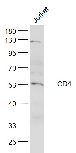 Lane 1: Jurkat cell lysates probed with CD4 Polyclonal Antibody, Unconjugated (bs-0647R) at 1:1000 dilution and 4\u02daC overnight incubation. Followed by conjugated secondary antibody incubation at 1:20000 for 60 min at 37\u02daC.