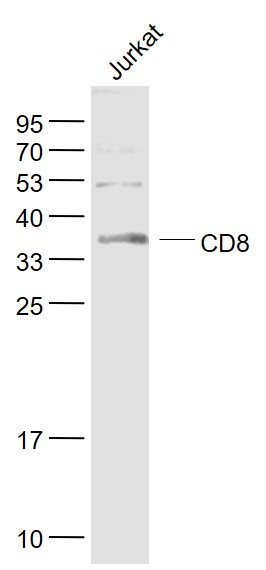 Lane 1: Jurkat cell lysates probed with CD8 Polyclonal Antibody, Unconjugated (bs-0648R) at 1:1000 dilution and 4˚C overnight incubation. Followed by conjugated secondary antibody incubation at 1:20000 for 60 min at 37˚C.