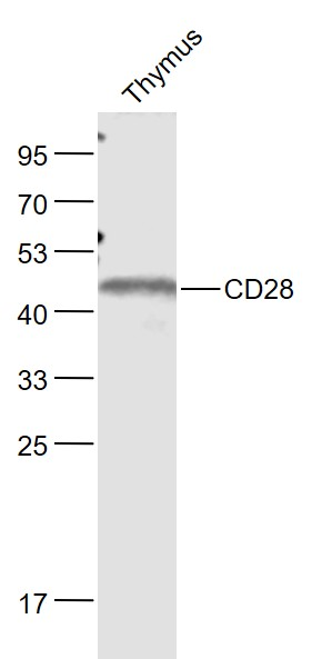 Lane 1: Thymus lysates probed with CD28 Polyclonal Antibody, Unconjugated (bs-1297R) at 1:1000 dilution and 4\u02daC overnight incubation. Followed by conjugated secondary antibody incubation at 1:20000 for 60 min at 37\u02daC.