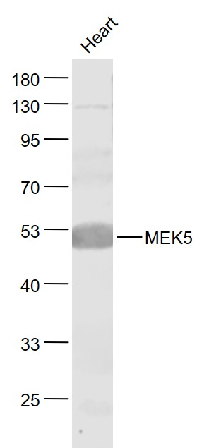 Lane 1: Heart lysates probed with MEK5 Polyclonal Antibody, Unconjugated (bs-4124R) at 1:1000 dilution and 4\u02daC overnight incubation. Followed by conjugated secondary antibody incubation at 1:20000 for 60 min at 37\u02daC.