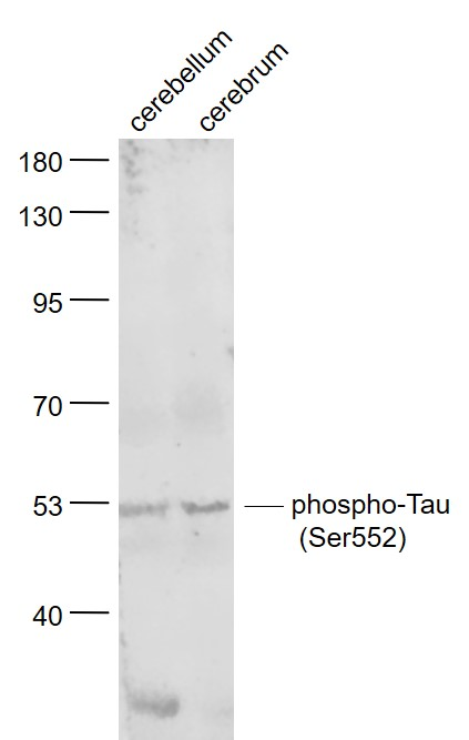 Lane 1: Mouse Cerebellum lysates; Lane 2: Rat Cerebrum lysates probed with Tau protein(Ser552) Polyclonal Antibody, Unconjugated (bs-10111R) at 1:1000 dilution and 4\u02daC overnight incubation. Followed by conjugated secondary antibody incubation at 1:20000 for 60 min at 37\u02daC.